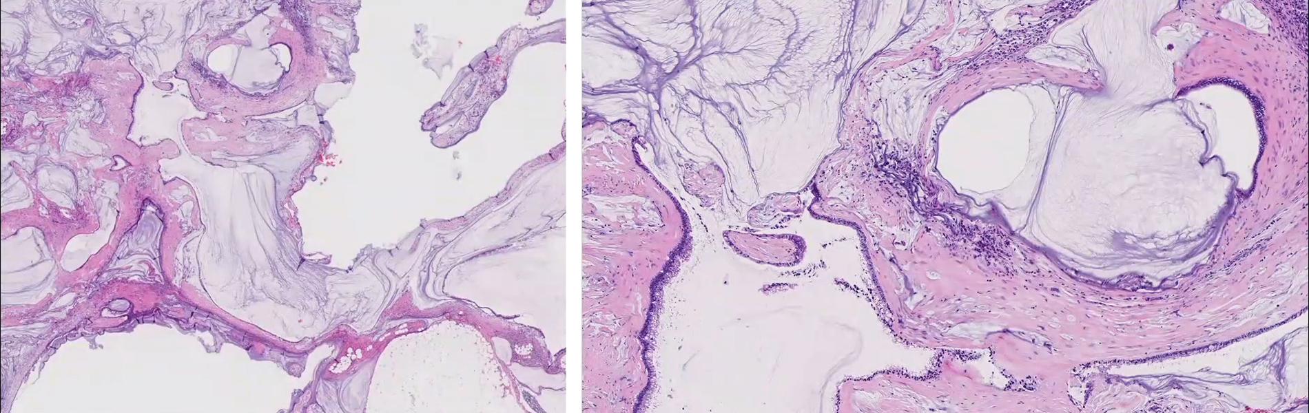教育症例シリーズ_6 下部消化管2